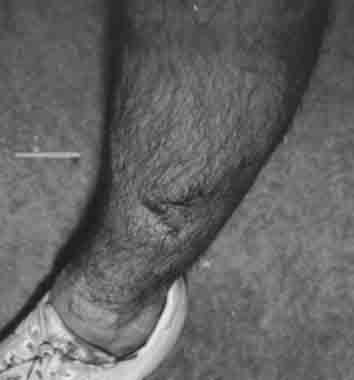 Leg crash